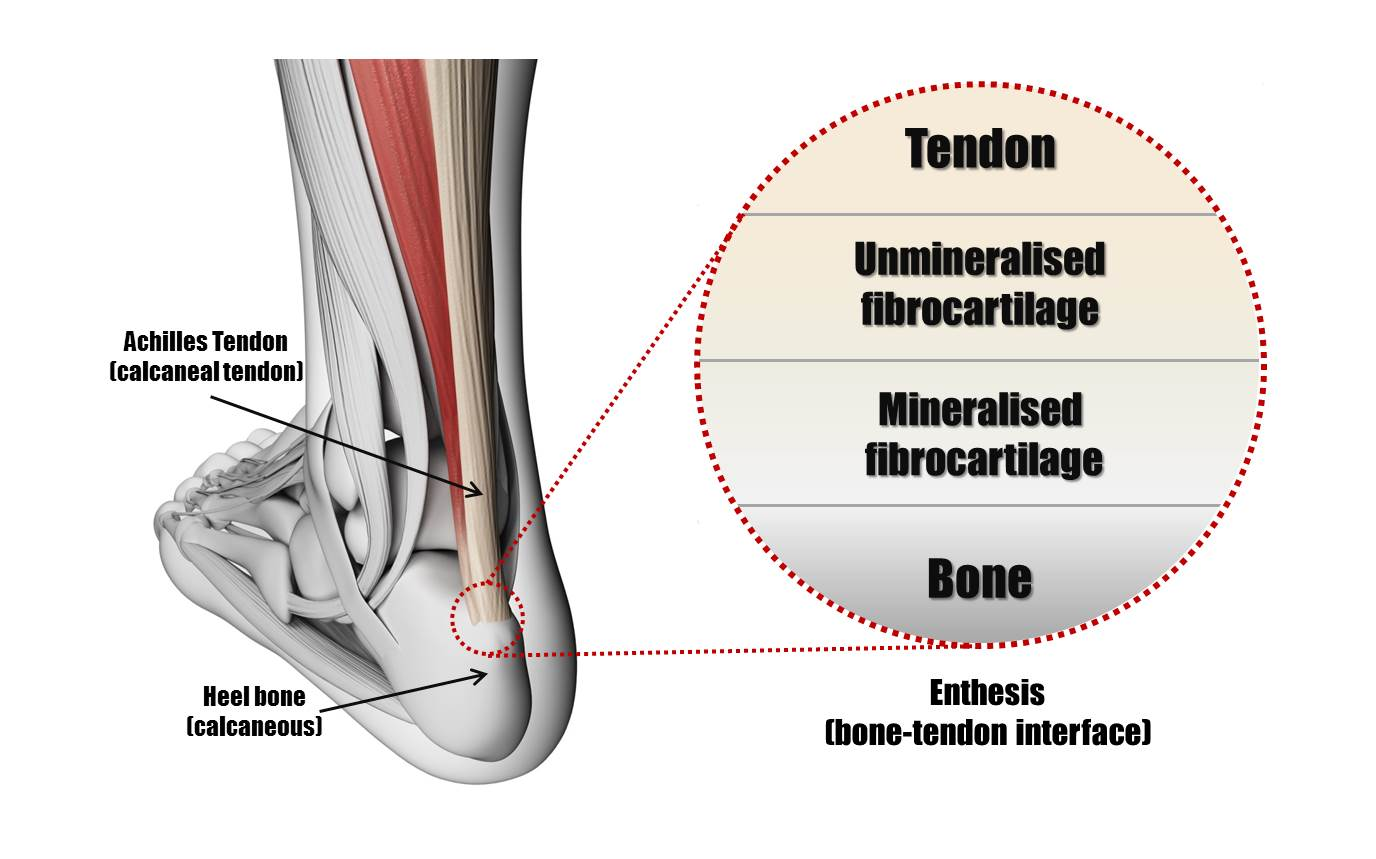 Tendon enthesis